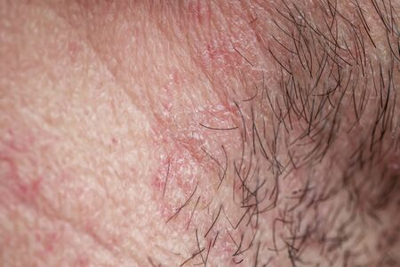 skin texture of the neck and chin of a young man covered with hair and beard bristles and irritation and scales 版權商用圖片