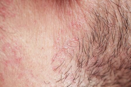 skin texture of the neck and cheeks of a young man covered with hair and beard bristles and irritation and scales