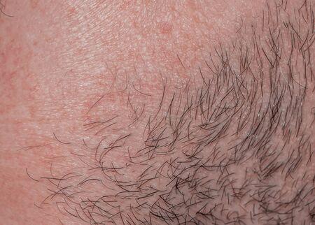 Fondo con la textura de la piel irritada enrojecida del cuello de un hombre cubierto de pelo y cerdas