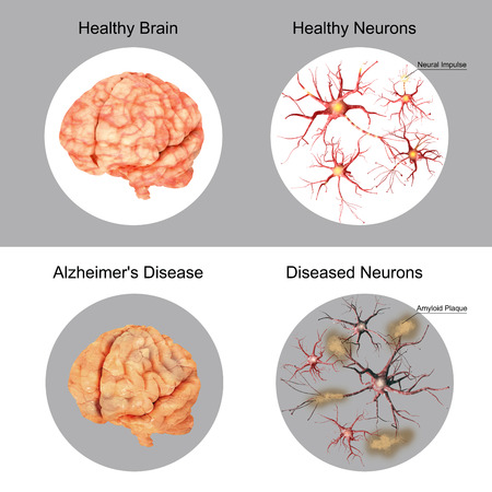 De patiënt en de hersenen gezonde hersenen en neuronen vergeleken. Ziekte van Alzheimer. Amyloïde plaques.
