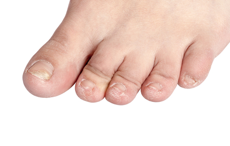 fungal nail infection (Onychomycosis). dry coarse skin of the legs (eczema) 写真素材