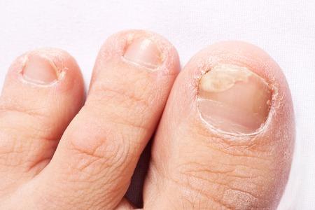 Nagelpilzinfektion (Onychomykose). trockene grobe Haut der Beine (Ekzem)