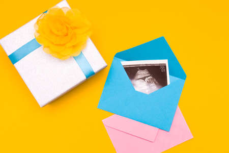 a picture of an ultrasound in a blue envelope, next to it is a silver box with a blue ribbon and a yellow flower and a pink envelope made of fabric, yellow background copy space top view, woman pregnant with a boy, surprise