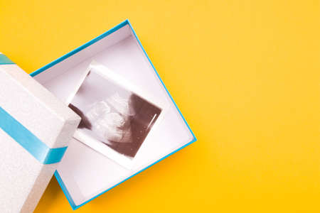 ultrasound picture in a silver box with a blue ribbon and yellow flower yellow background place copy top view, woman pregnant with boy or girl, surprise, photo as a gift, pregnancy concept