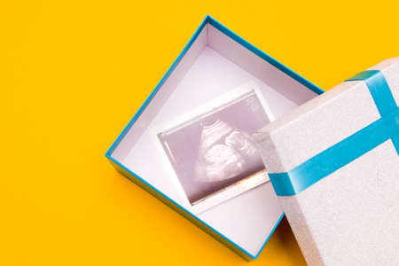 ultrasound picture in a silver box with a blue ribbon and yellow flower yellow background place copy top view, woman pregnant with boy or girl, surprise, gift, pregnancy concept Reklamní fotografie