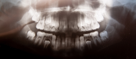 Panoramic dental x-ray of child photo with milk teeth and first molar teeth. selective focus. Health care, dental hygiene and happy childhood concept Stock Photo