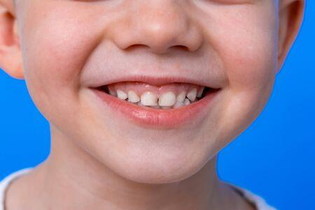 wide kids smile on blue background close up. First molar teeth. Health care, dental hygiene. Mockup, copy space