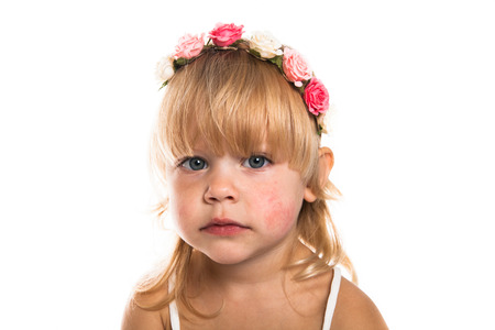 hypersensitivity: Girl with a  diathesis, wreath of flowers on her head on a white background Stock Photo