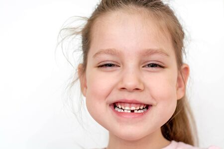 a happy girl in a pink school- age t-shirt without a front tooth laughs. To close. Diphyodont. Isolated on a white background. health