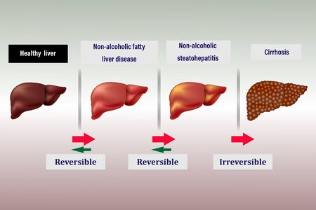 stage disease of the liver, arrows indicate reversible and irreversible stages
