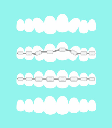 A Vector illustration set of teeth, dental orthodontics treatment with teeth braces, process of level teeth, beautiful smile in cartoon flat style.