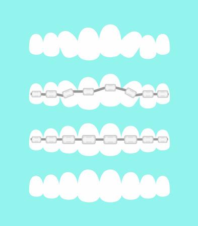 Un conjunto de ilustración vectorial de dientes, tratamiento de ortodoncia dental con aparatos dentales, proceso de nivelación de los dientes, hermosa sonrisa en estilo plano de dibujos animados.
