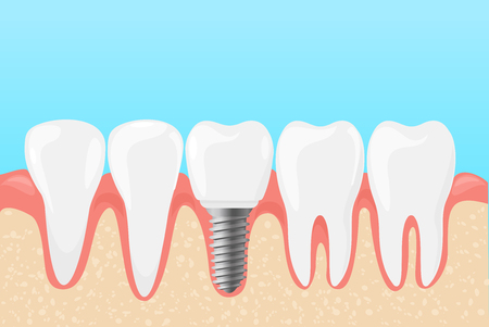 Vector illustration of human teeth and dental implant. Medicine dentists concept of teeth care in flat cartoon style
