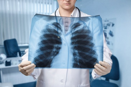 A young doctor is standing and looking at the lungs image at the blurred hospital room background. The concept of medical service, diagnosis and treatment. Stok Fotoğraf