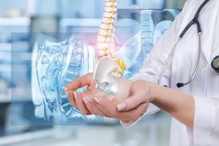 Un medico tiene in mano un modello di colonna vertebrale artificiale con il bacino unito all'immagine digitale della colonna vertebrale sullo sfondo. Un concetto di trattamento delle malattie della colonna vertebrale.
