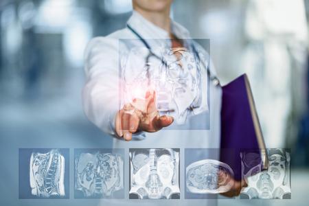 El médico hace clic en la imagen de resonancia magnética sobre un fondo borroso. Foto de archivo
