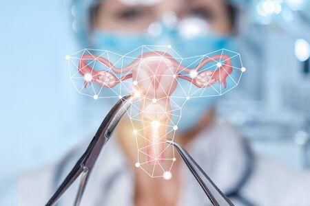 The concept of surgical treatment of the female uterus. Banco de Imagens