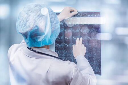 A medical worker is examining a magnetic resonance imaging scan on a blurred background. Banco de Imagens