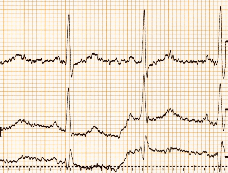 ECG diagram, ECG (electrocardiogram) paper  photo