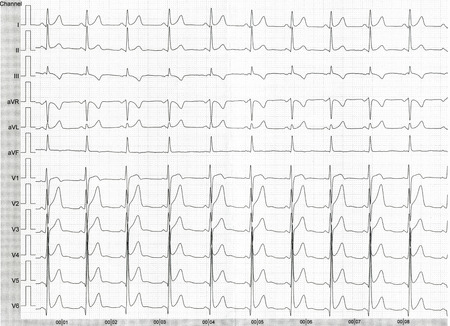 oscillate: Detail of an electrocardiogram in paper  Stock Photo
