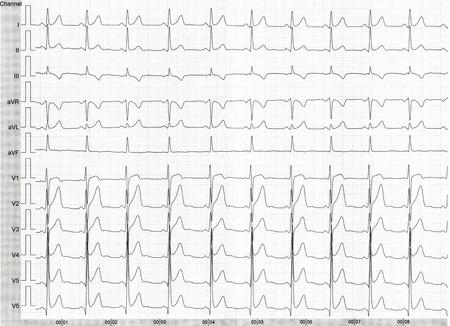 cardioid: Detalle de un electrocardiograma en papel