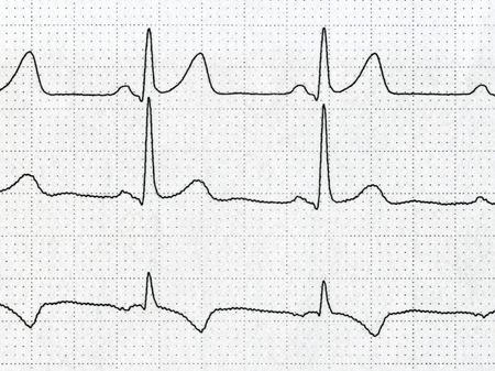 tachycardia: Detalle de un electrocardiograma en papel