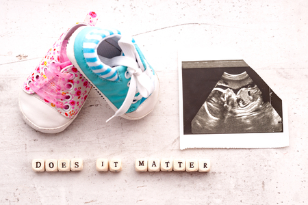 Blue and pink baby booties with a picture of ultrasound for 20 weeks on a light background. Inscription does it matter