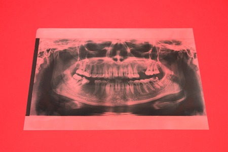 Panoramic x-ray image of teeth. Some teeth removed, problem with teeth on red background.