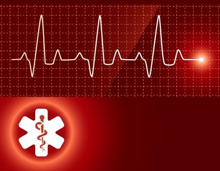 electrocardiograma: Antecedentes médicos
