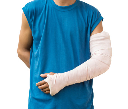 Men with his broken arm. Isolated on white background Foto de archivo