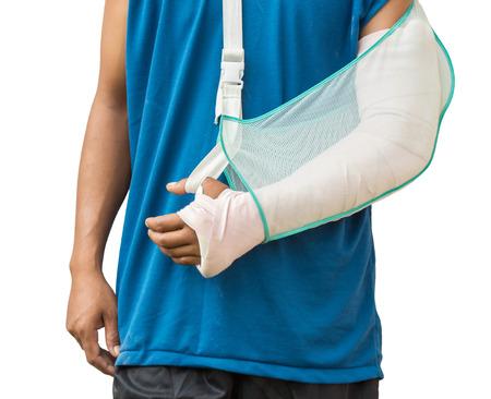brazo roto: Hombres con su brazo roto. Aislado en el fondo blanco