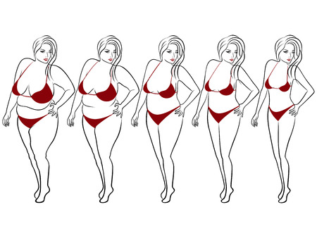 liposuction: Five stages of a woman on the way to lose weight, vector contour isolated on white background