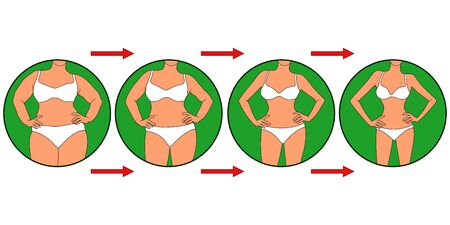 Woman on the way to lose weight, female body in underwear in green circle, four stages isolated over white illustration Standard-Bild - 143130156