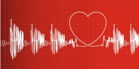 heart surgery: Heartbeat
