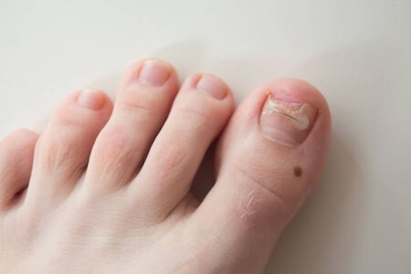 Ingrown toenail treatment. The results of drugs for the treatment of fungal infections and ingrown nails. Bracket, toenail clamp