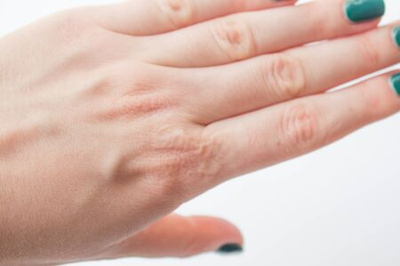 Close up female hand with a healed burn scar. Concepts of healthcare and beauty