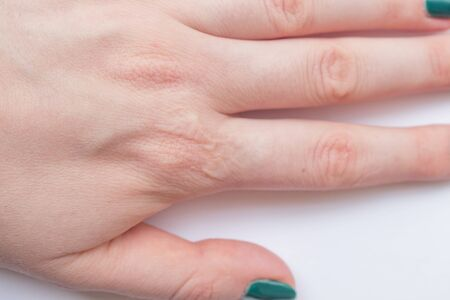 Close up female hand with a healed burn scar. Concepts of healthcare and beauty Imagens