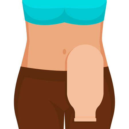 Young woman with colostomy bag. Vector illustration