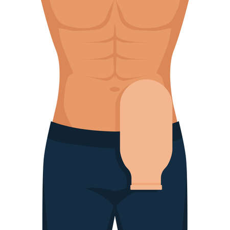 Man with Man with colostomy bag after colon cancer surgery. Vector illustration