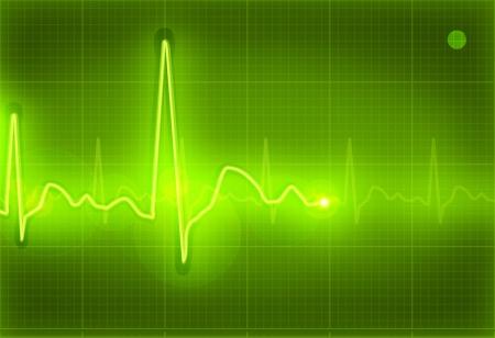 oscillate: Electrocardiogram green Illustration