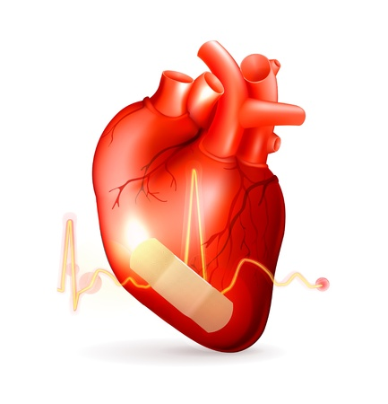 Beschadigde hart