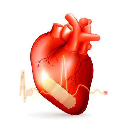 Coração danificado Ilustración de vector