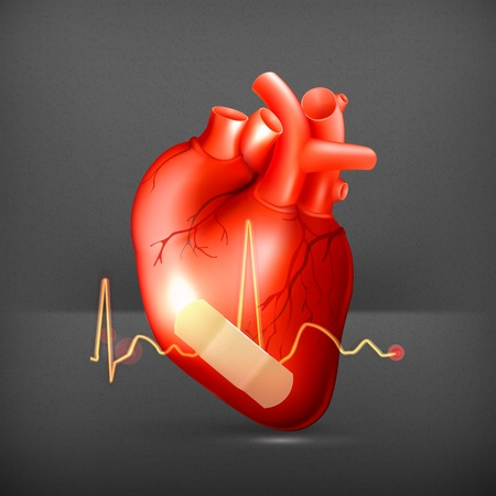 Damaged heart Stock Vector - 19556371