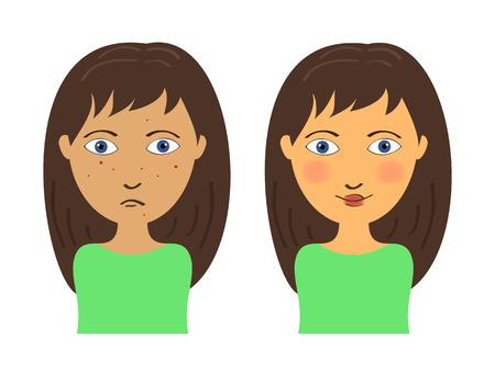 Cara de la muchacha con el acné y la piel clara antes y después Foto de archivo - 35400452