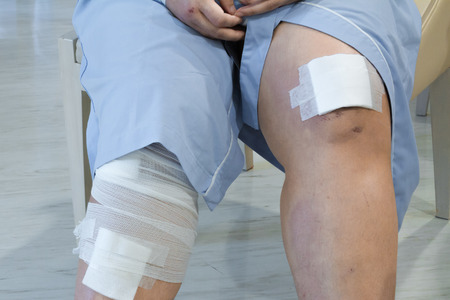 gauze: women knee with adhesive and gauze bandage. Stock Photo