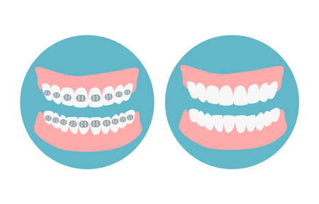 Before and after alignment teeth process. Alignment of bite of teeth, dental row with braces, Orthodontic healthcare concept. Vector illustration Vettoriali