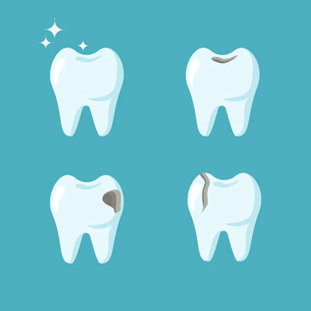Set of various molars teeth isolated on blue background. Vector flat cartoon illustration. Dental health concept. Oral care, dental diseases. Design for dental, dentist or stomatology clinic Vectores