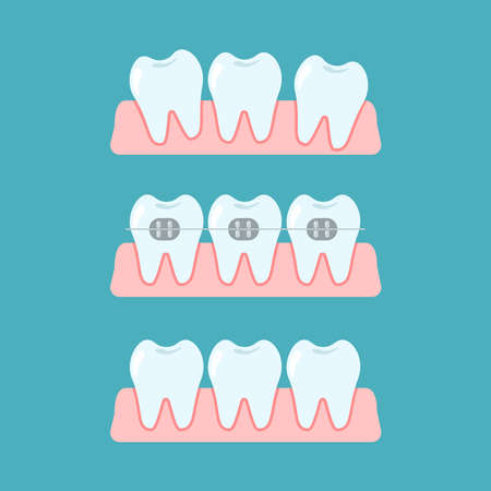 Stages of orthodontic treatment braces on teeth. Alignment of bite of teeth, dental row with braces, Orthodontic, stomatology concept. Vector flat cartoon illustration Vettoriali