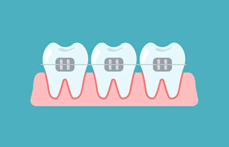 Alignment of bite of teeth, dental row with braces, Orthodontic, stomatology concept. Vector flat cartoon illustration