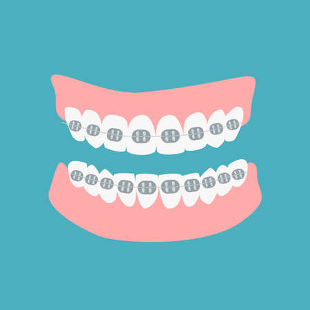Denture icon gums with teeth and braces isolated on green background. Alignment teeth process. Dental prostheses. Orthodontic healthcare concept. Vector flat cartoon illustration.